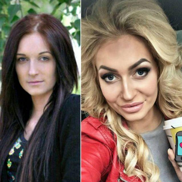 Участники «Дом-2» до и после пластики (17 фото)