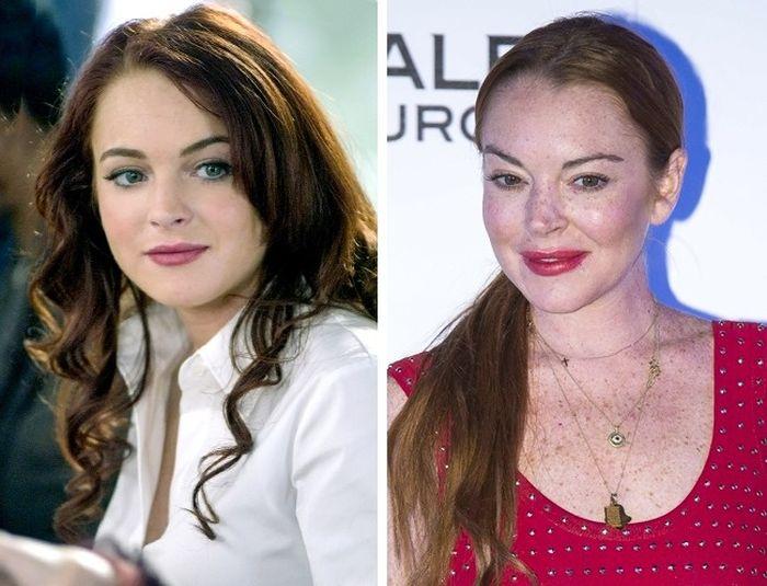 Звезды до и после пластических операций (10 фото)