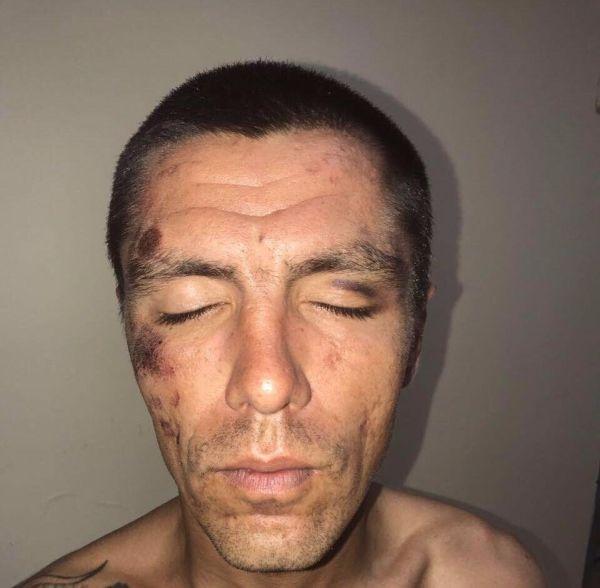 Жителя Белгорода увезли на допрос в полицию, где устроили ему пытки (4 фото)