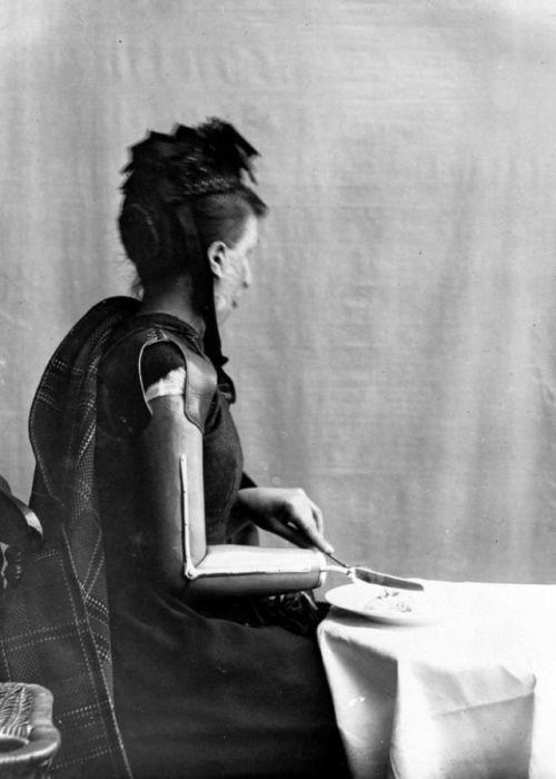 Протезы Джеймса Гиллингхэма, опередившие свое время (20 фото)