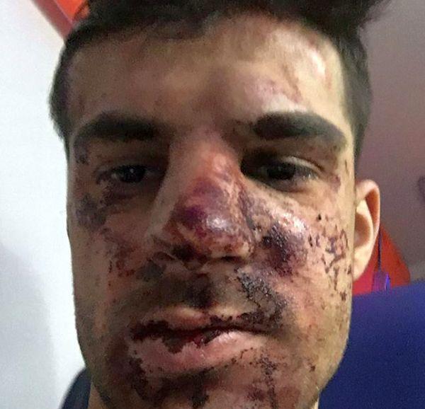 В Санкт-Петербурге у собственного дома избили игрока «Зенита» Дениса Терентьева (2 фото)
