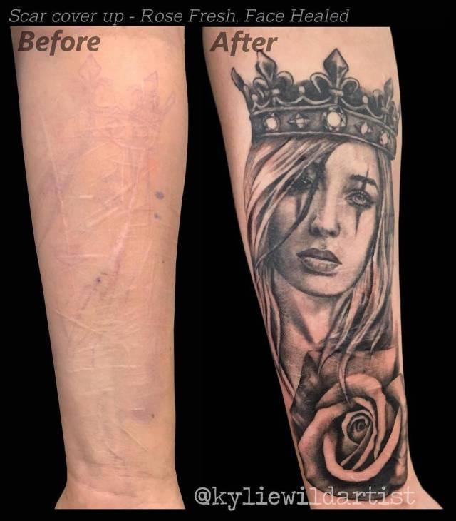 Татуировки, скрывающие и преображающие шрамы (26 фото)