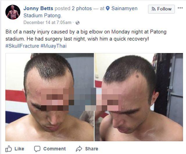 Боец муай-тай продолжал бой с проломленным черепом (3 фото)