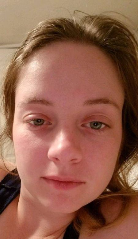 Изменения во внешности после 100 дней трезвости (2 фото)