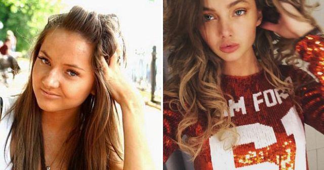Российские звезды Instagram до и после пластических операций (15 фото)