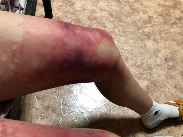 Студентка из Астаны обморозила ноги, одевшись не по погоде (2 фото)
