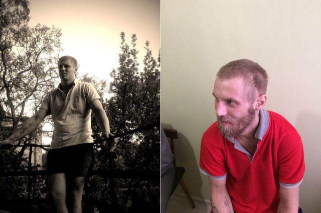 Врачи едва не довели молодого парня до недееспособного состояния (2 фото)