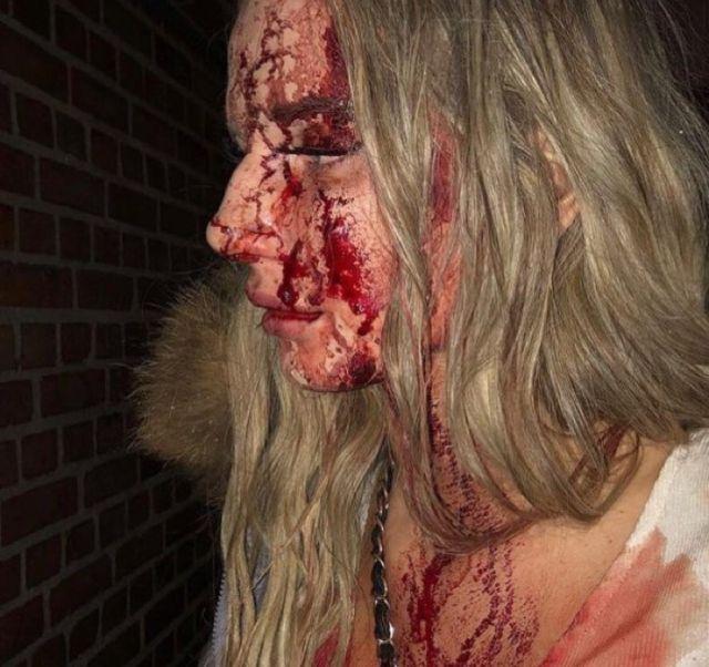 Молодую шведку жестоко наказали за отказ в сексе (3 фото)