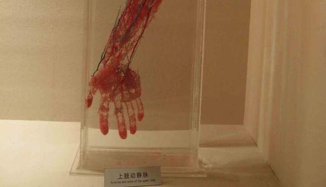 Кровеносная система без тканей: экспонаты из Шанхайского музея (2 фото)