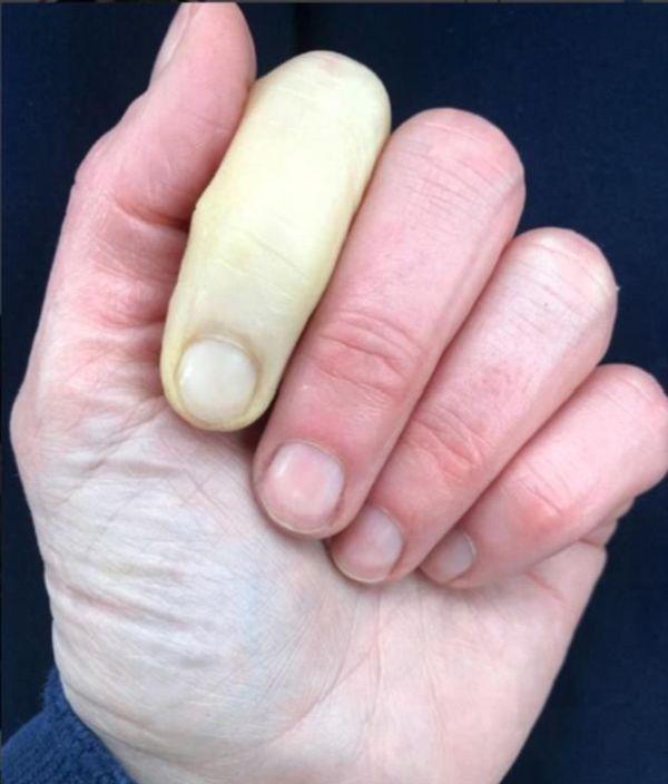 Британская телеведущая Дженни Фалконер показала последствия редкого заболевания (2 фото)