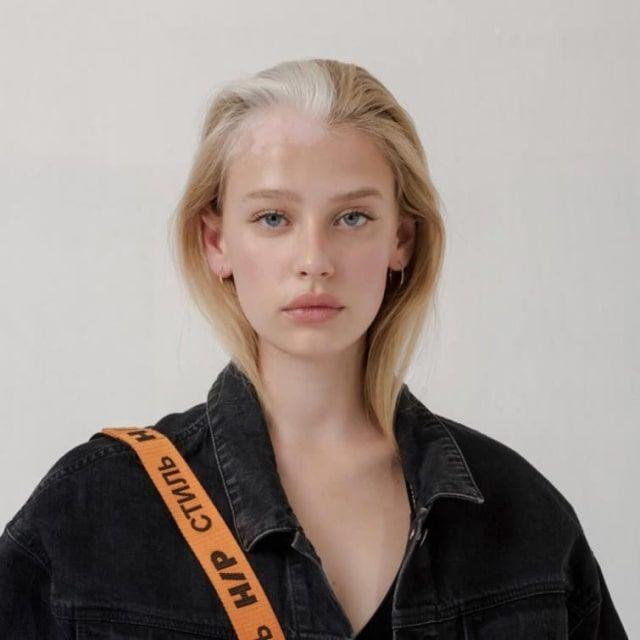Модели, превратившие недостатки внешности в особенности
