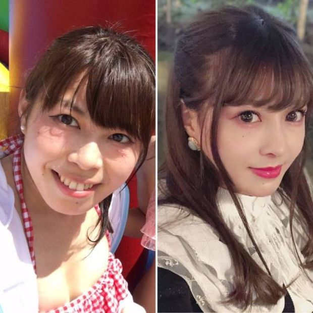 Пластическая хирургия сделала японку похожей на любимого персонажа из аниме (7 фото)