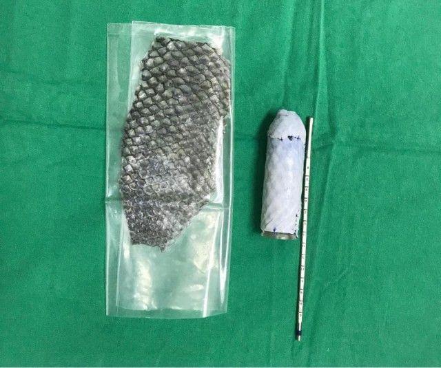 Девушке вырастили матку из рыбьей кожи (6 фото)