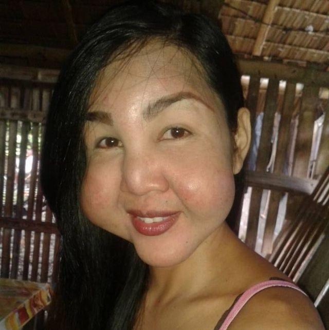 Подпольный косметолог изуродовала лица девушек (5 фото)