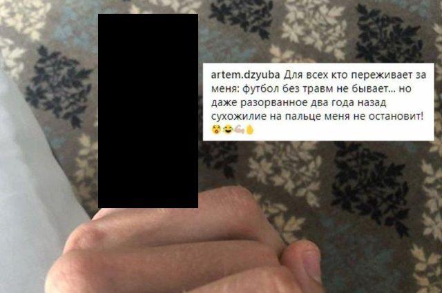 Поврежденный мизинец Артёма Дзюбы стал героем комикса (2 фото)