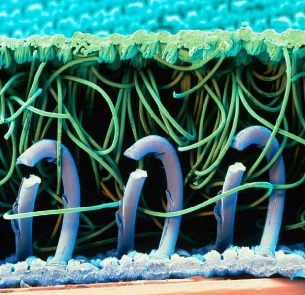 Интересные вещи под микроскопом (18 фото)