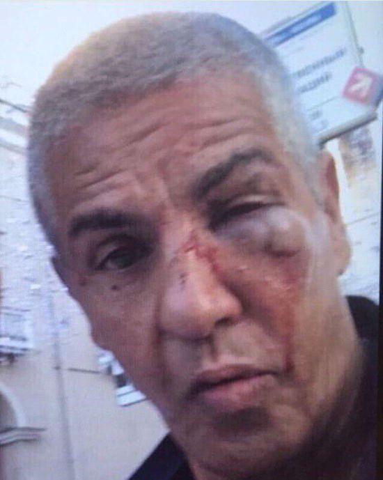 Фотография Сами Насери после драки в караоке-баре в Москве (фото)