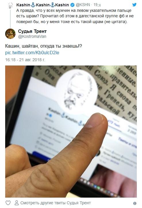 """""""Необъяснимые"""" шрамы на указательном пальце левой руки (4 скриншота)"""