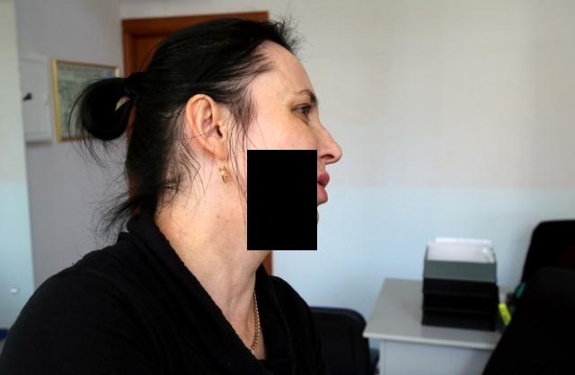 История клиентки банка, которую кассирша ударила в лицо шариковой ручкой (2 фото + видео)