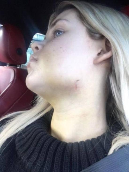 Пластические хирурги изменили жизнь этой девушки (13 фото)