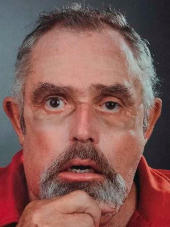 Обезображенный 64-летний канадец получил новое лицо (3 фото)