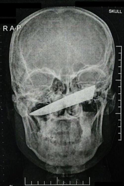 Житель ЮАР четыре дня провел с 10-сантиметровым лезвием ножа в черепе (4 фото)