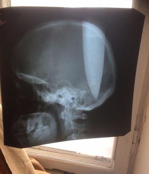 В Ростове мужчина воткнул себе в голову нож (3 фото + видео)