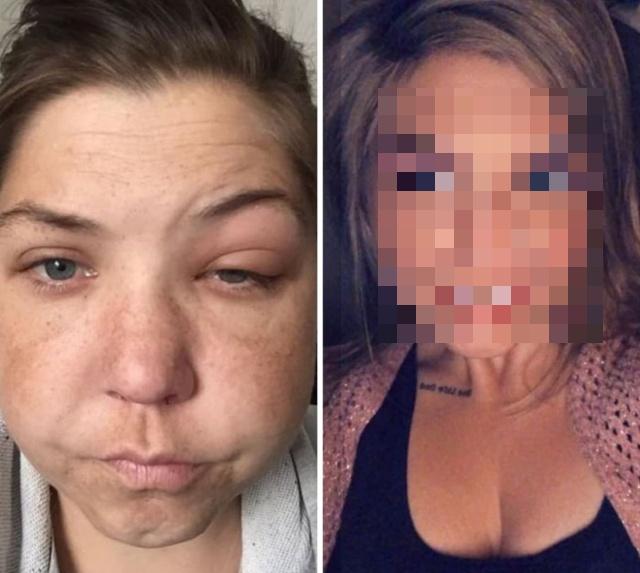 Год трезвости: как изменилась девушка после отказа от алкоголя (2 фото)