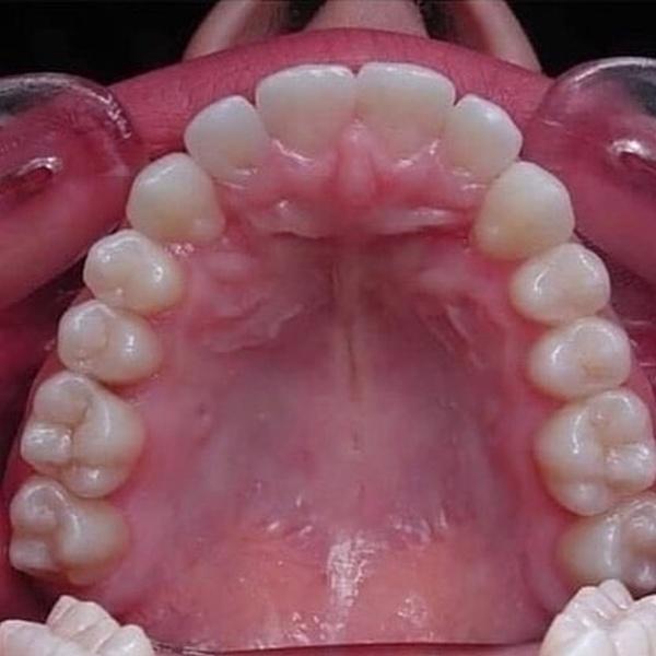 Работа ортодонта во всей красе! (11 фото)