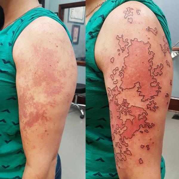 Татуировки, скрывающие изъяны (21 фото)