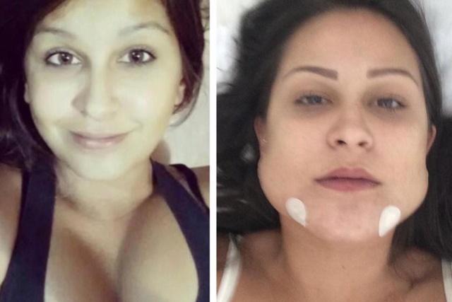 В Бразилии судят хирурга Уэсли Мураками, который изуродовал лица как минимум 40 пациентов (3 фото)