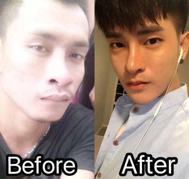 Житель Таиланда сделал 30 пластических операций, чтобы стать... корейцем (5 фото)