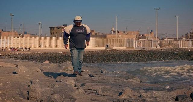 Водолаз Алехандро Рамос с раздутым из-за декомпрессионной болезни телом: год спустя (7 фото)