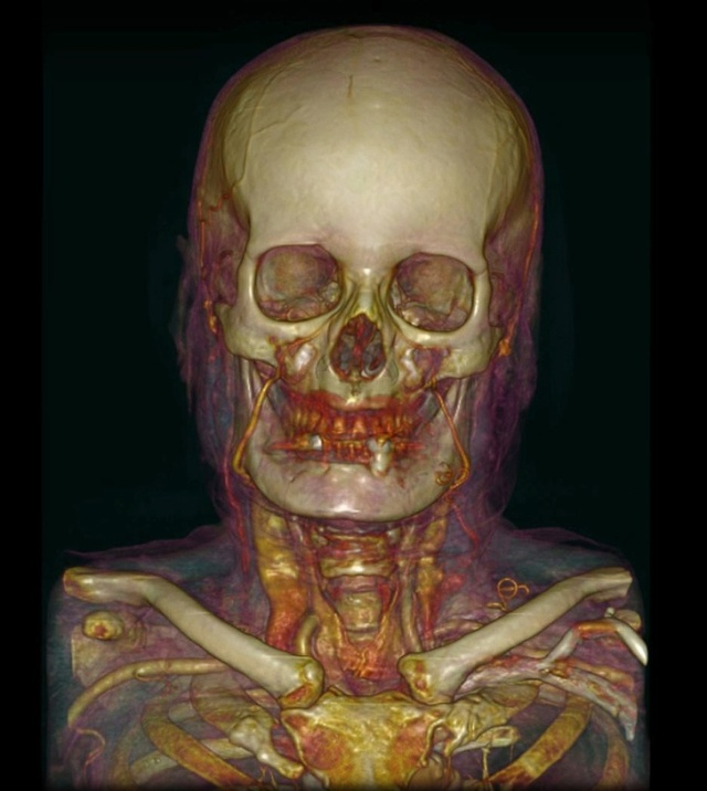Необычный взгляд на человеческое тело при помощи медицинских приборов (16 фото)