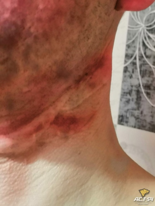 Таксист чудом смог спастись от похитителей и помог полицейским их задержать (2 фото)