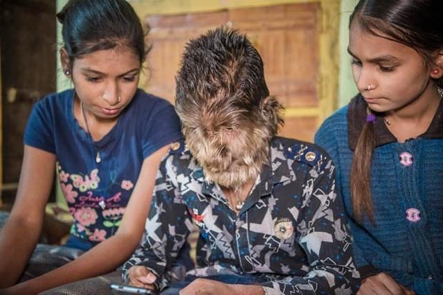 "13-летний Лалит Патидар - ""мальчик-оборотень"" из Индии (8 фото)"