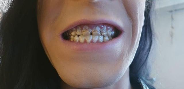 Парень лишился зубов из-за пристрастия к энергетикам (6 фото)