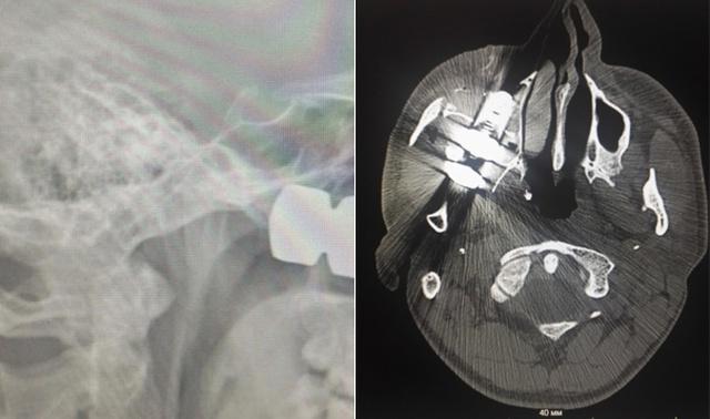Из-под колеса грузовика вылетел болт, который попал в голову лесосибирцу (4 фото)