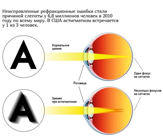 Как видят мир люди, страдающие от астигматизма (10 фото)
