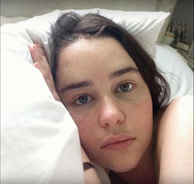 Фотографии Эмилии Кларк в больничной палате после инсульта (4 фото)