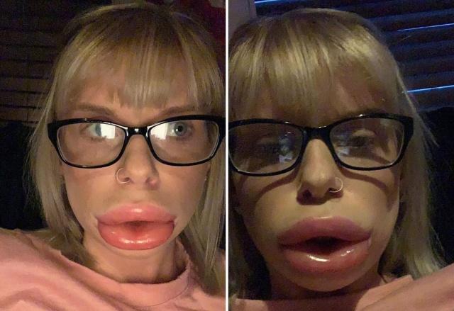 """Крем для увеличения губ """"сработал"""" (4 фото)"""