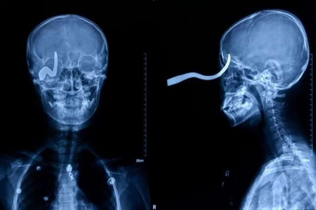 Мир глазами рентгенолога (20 фото)