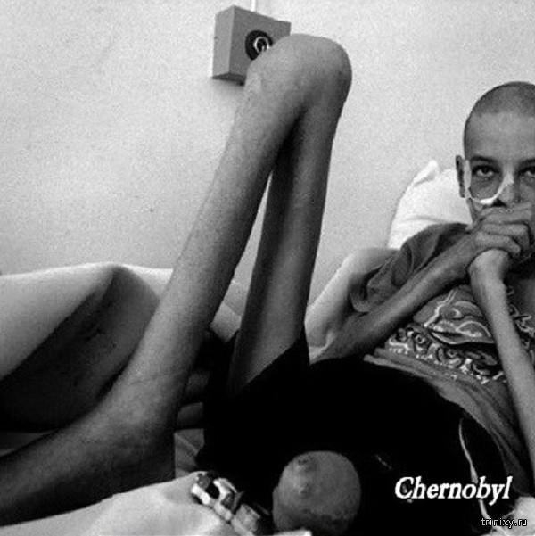 Чернобль 30 лет спустя после аварии