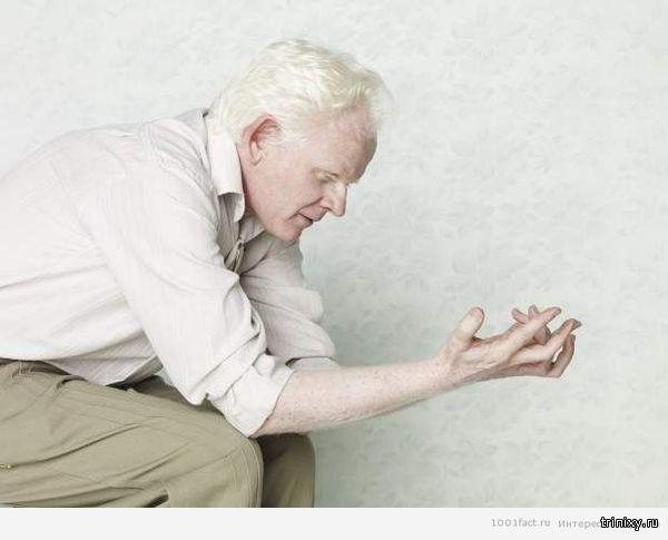 О людях — альбиносах