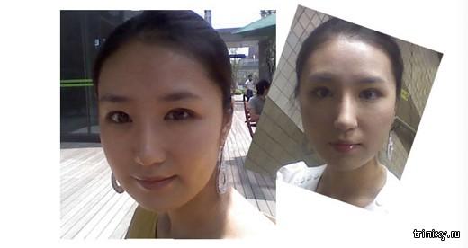 Корейская пластическая хирургия с фото «до» и «после»