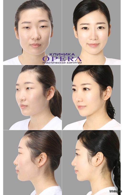 увеличение груди в корее