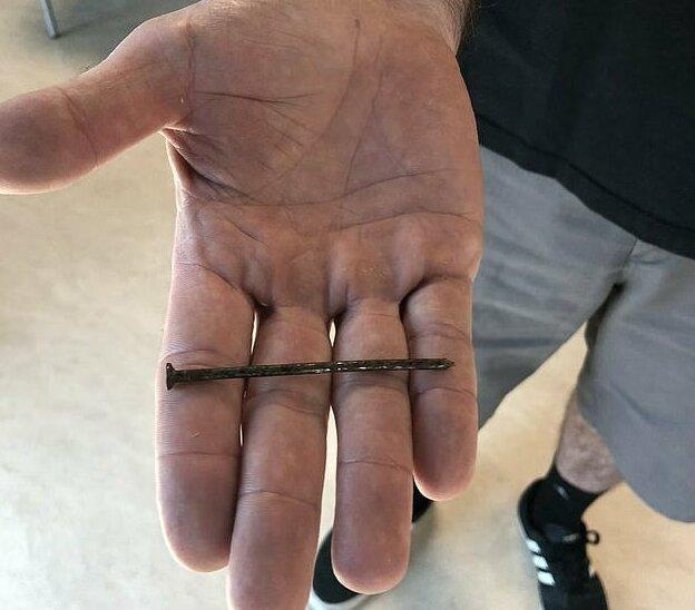Плотник из Техаса захотел проверить, стальное ли у него сердце