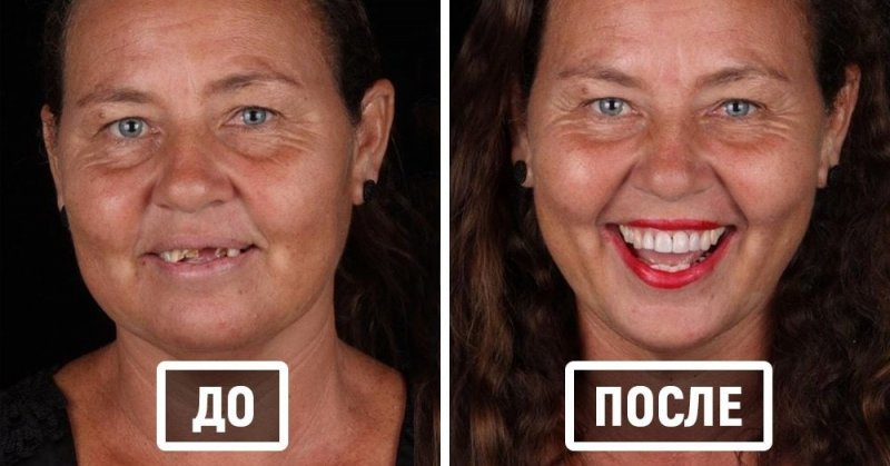 Если нет денег на стоматолога, это не значит, что у тебя не будет голливудской улыбки
