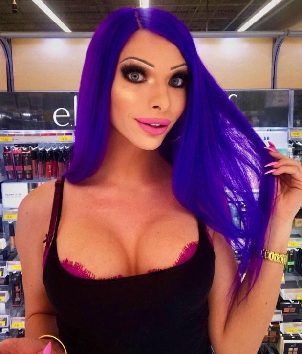 Эта девушка потратила больше миллиона рублей на пластику