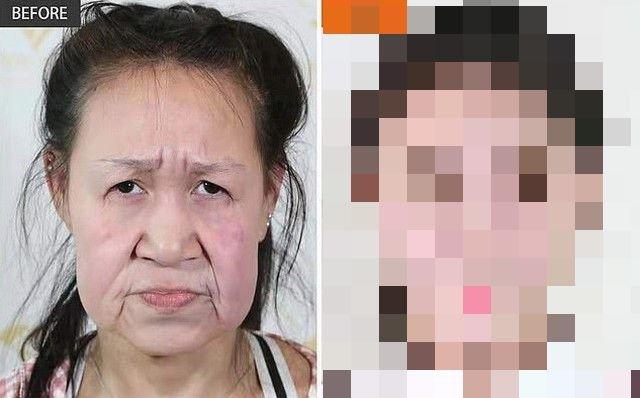 15-летнюю китаянку путали с бабушкой, но после операции она стала красавицей
